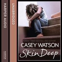 Skin Deep - Casey Watson
