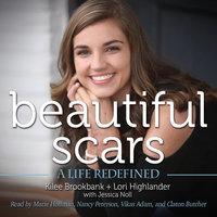 Beautiful Scars - A Life Redefined - Kilee Brookbank