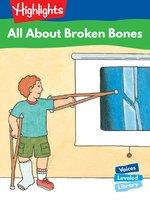 All About Broken Bones - Sally Speer Leber
