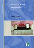 Reconstrucción de dientes endodonciados - Ernest Mallat Callís