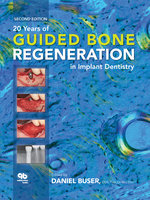 20 Years of Guided Bone Regeneration in Implant Dentistry - Daniel Buser
