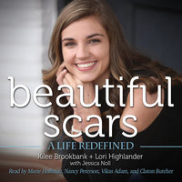 Beautiful Scars - A Life Redefined - Kilee Brookbank